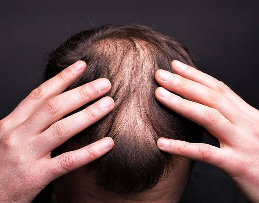 Can Hair Loss Be Stopped