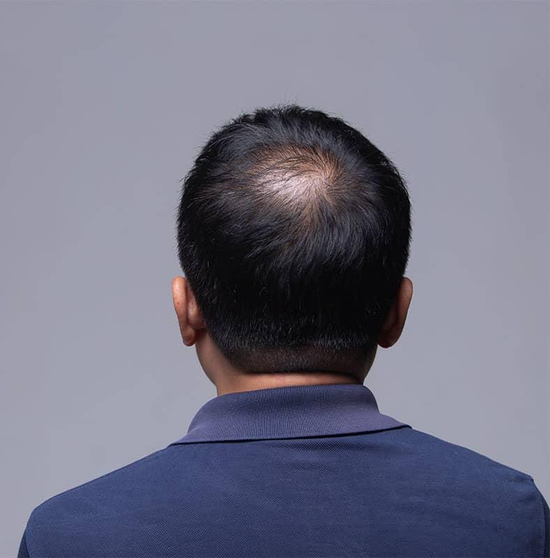 Causes of Mens Hair Loss