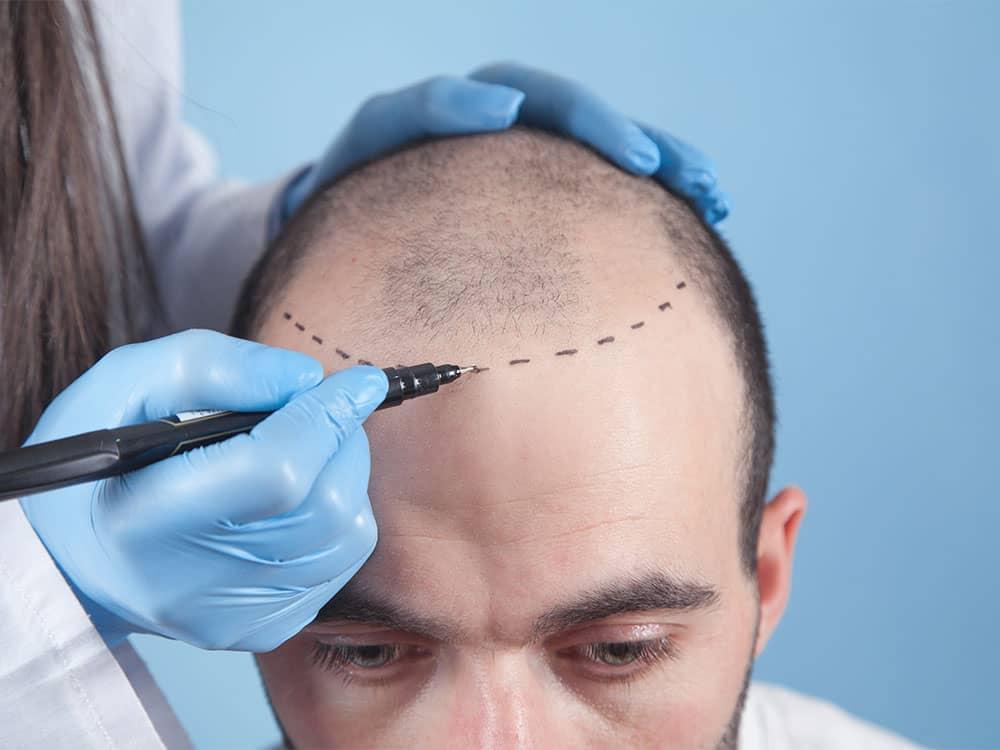 Hair Loss Treatments for Men