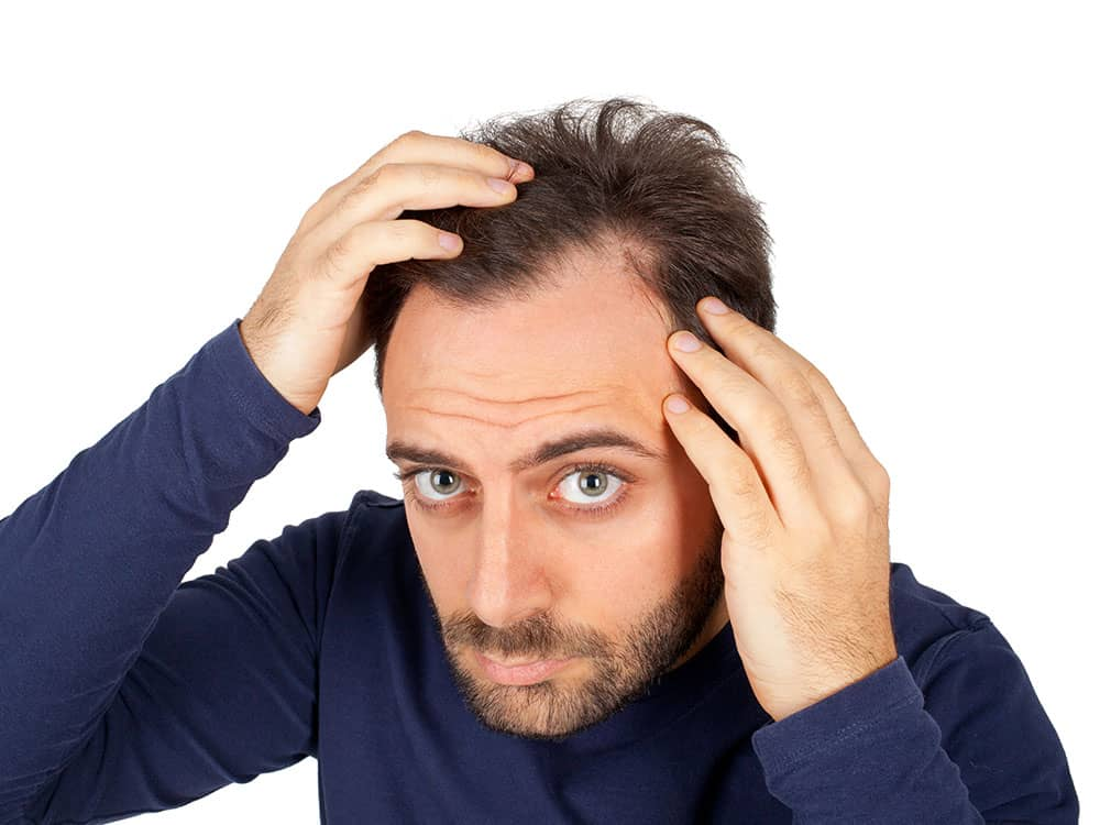 hair restoration option