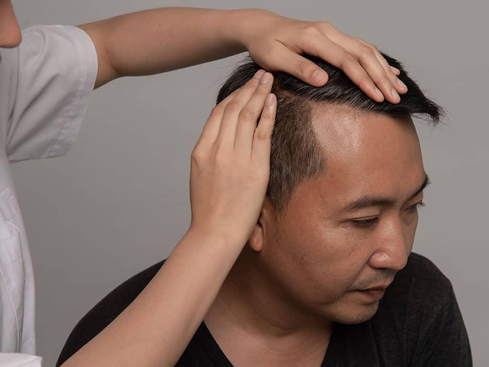 men experience hair loss