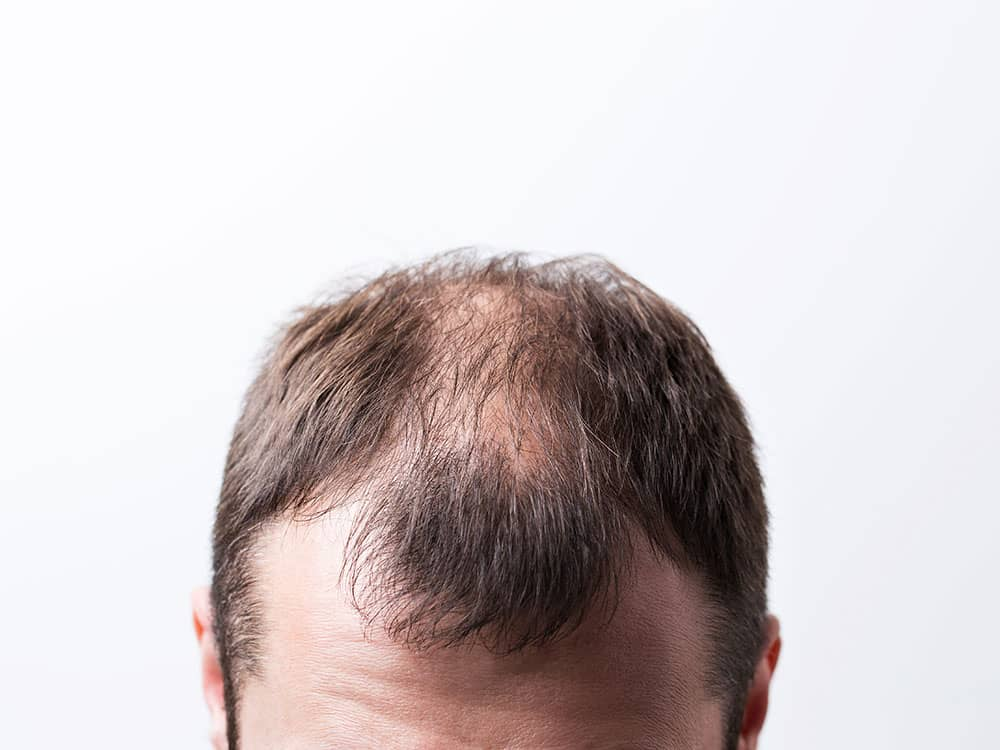 men hair loss