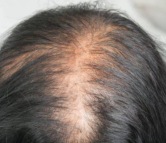 Hair Loss Treatments Women